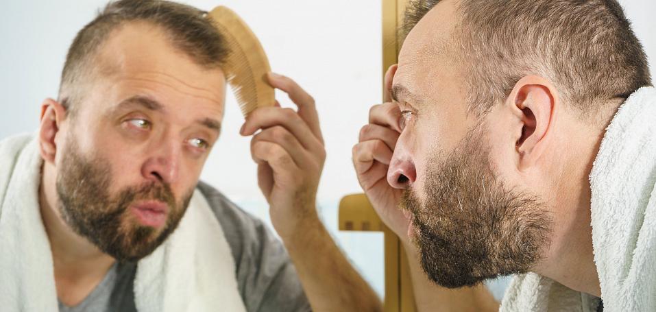 Почему у мужчин выпадают волоссы?